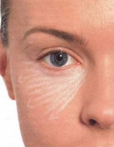 Каким цветом нужно замазывать синяки под глазами